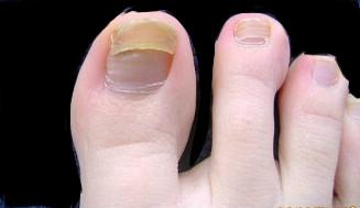 Лечение для ногтей и основа под лак железная твердость el corazon iron hard